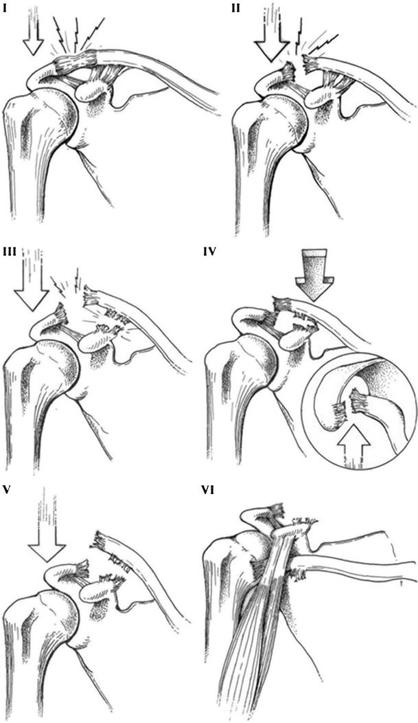 Acromioclavicular joint separations. While low-grade AC joint injuries are frequently managed successfully using non-surgical measures, high-grade injuries frequently warrant surgical intervention to minimize pain and maximize shoulder function.