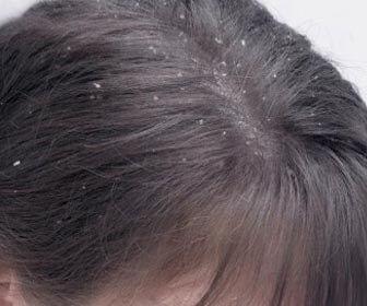 La Dermatitis Seborreica y su relación con la alopecia