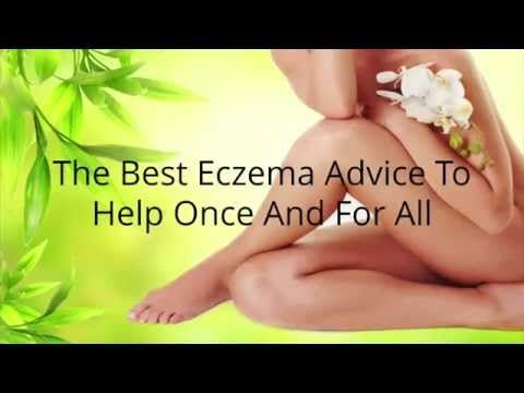 How to Treat Eczema on Face -  CLICK HERE for the Eczema Treatment! #eczema #eczemacure #healthguides   Treating eczema on face. The Basics of Eczema and Your Skin Problems and Natural Treatments. How to Treat Eczema on Face –   - #Eczema