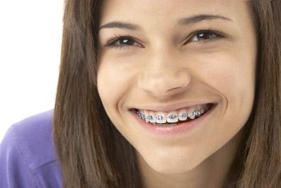 :-D z DeClinic #DeClinic #ortodonta_warszawa #ortodoncja_warszawa #aparat_staly #aparat_na_zeby