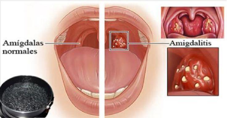 La amigdalitis es un tema muy común en la población y esta no es más que una infección agua en la zona de las amígdalas causada por una batería o por un virus. Los síntomas más comunes son la fiebre, el dolor de garganta, dolor al tragar, malestar general y un dolor en los ganglios …