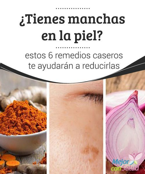 270 best Remedios Caseros images on Pinterest | Healthy