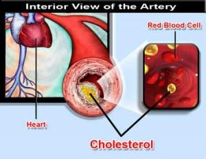 http://obatpenurunkolesterol.bloginformasiteraktual.com/
