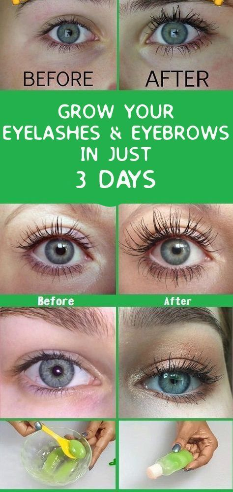 Grow Eyelashes And Eyebrows In Just 3 Days Aloe Vera Castor Oil