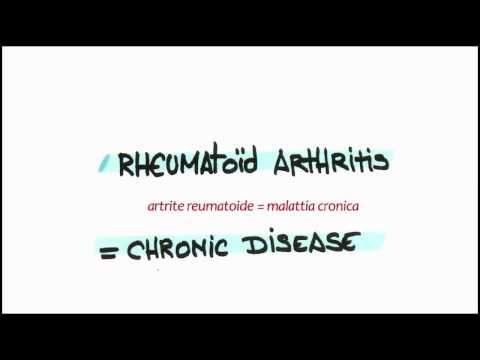 Ottimi consigli per chi soffre di artrite reumatoide.