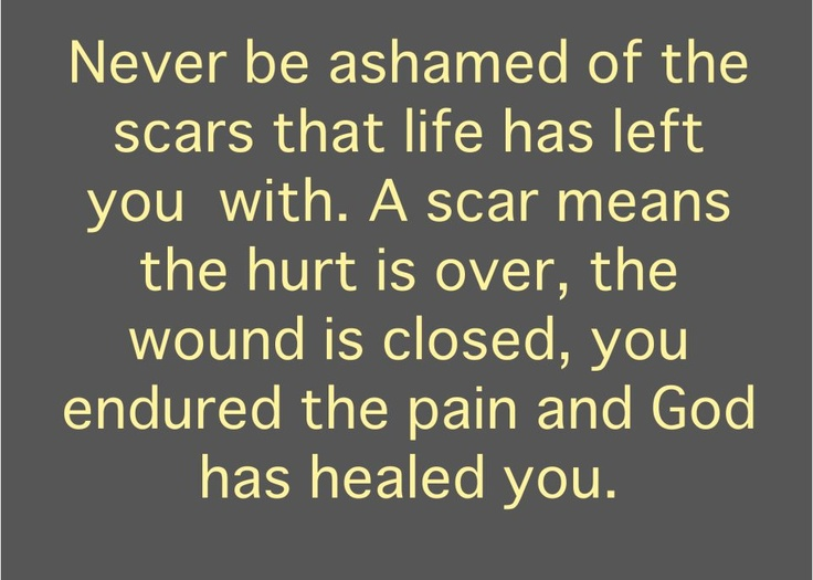 Never be ashamed...Remember This, Life, Inspiration, Quotes, Peace Places, Hard Time, Scars, Healing, God Grace