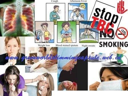 WASPADAI Bahaya Dan Dampak Penyakit Flek Paru-Paru ( TBC ), PARAH bisa menyebabkankematian, jika tidak mengakibatkan komplikasi PENYAKIT . STOP SEKARANG JUGA