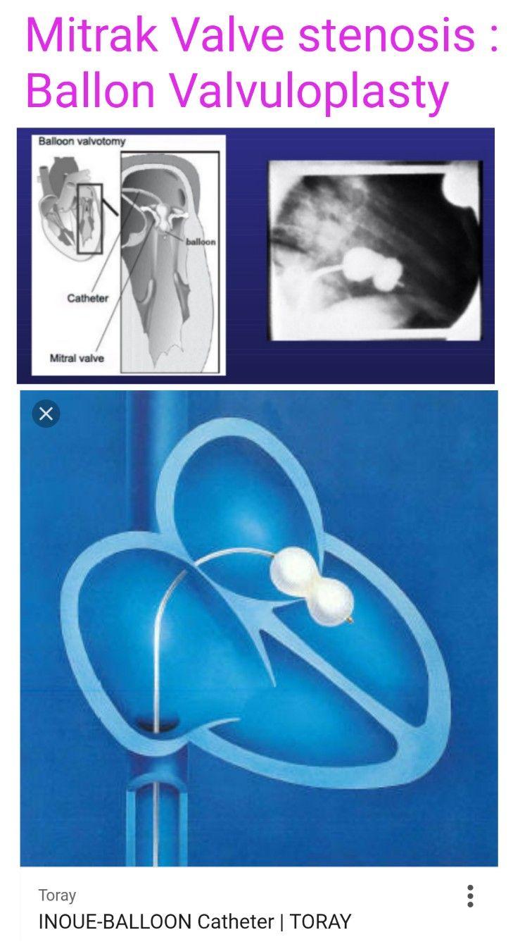 Mitral valve stenosis balloon valvuloplasty - Inoue balloon catheter ...