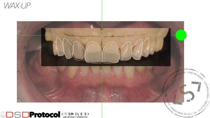 Planowanie nowego uśmiechu cyfrową technologią DSD Digital Smile Design