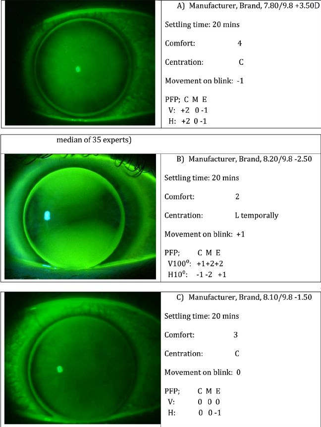 Fig. 3. (A) Example of how to record a well centred, steep lens (fluorescein grading median of 35 experts). (B) Example of how to record a slightly oblique toric lens fit, which is mobile and crosses the limbus (fluorescein grading median of 35 experts). (C) Example of how to record a largely aligned lens with little edge lift (fluorescein grading median of 35 experts).
