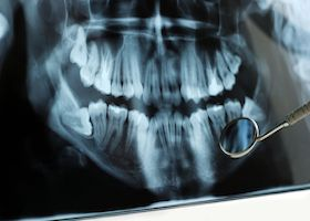 Teeth x-rays http://www.calmdental.com/