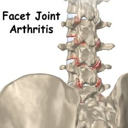 HOW TO TREAT FACET JOINT ARTHRITIS