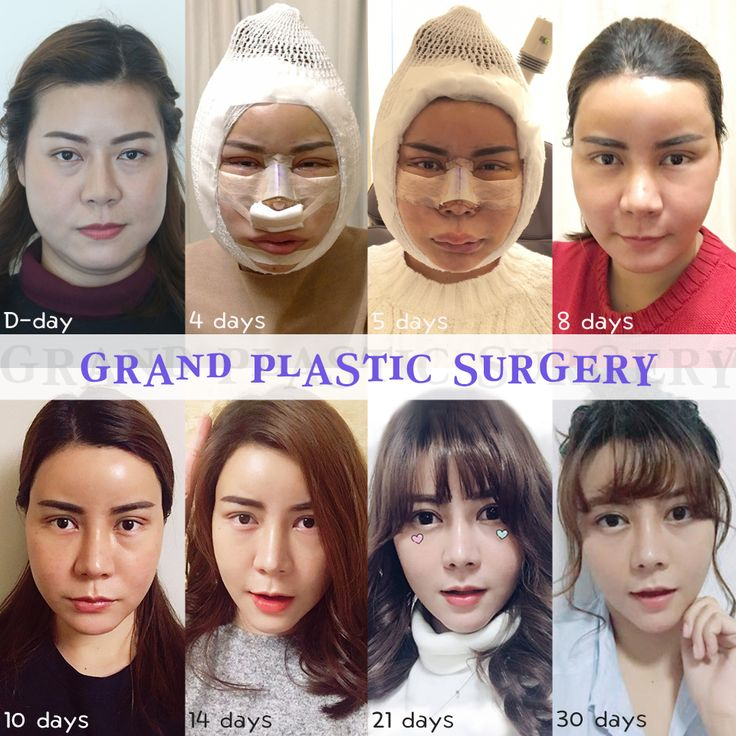 [Grand Plastic Surgery Korea, Indonesia Page] Punya