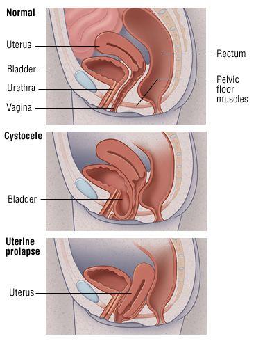 Uterine And Bladder Prolapse
