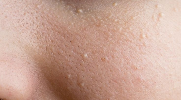 Do you Have White Bumps Around Your Eyes? Remove them with These 10 Natural Remedies! - DavidWolfe.com