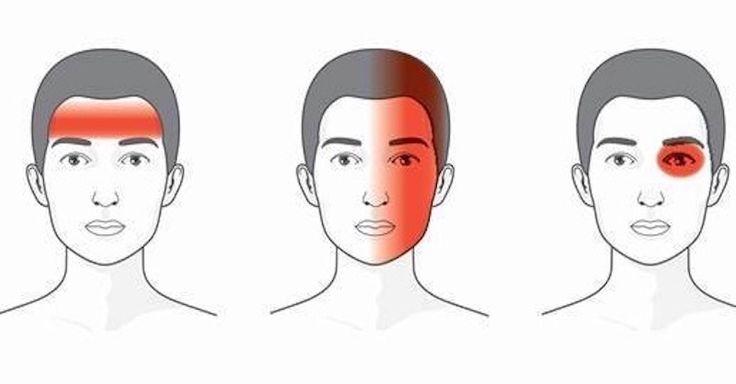 To, aký prostriedok použiť na bolesť hlavy, závisí od jej typu. Tu sú najlepšie veci na bolesti charakteristické pichaním, tlakom a migrénu.
