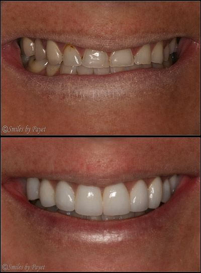This patient suffered from bulimia, which damaged her teeth; she needed porcelain crowns and dental implants to rebuild her smile.
