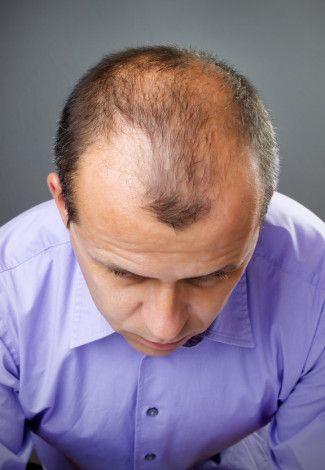 Wielu z was zapewne poszukuje idealnego środka na porost włosów, w/g nas jest nim Follixin, zapraszamy do artykułu http://preparat.eu/follixin-preparat-na-wypadanie-wlosow/