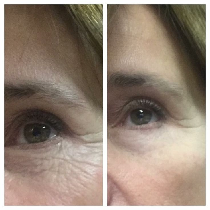 More great eye serum results Www.LoraB5928.nerium.com