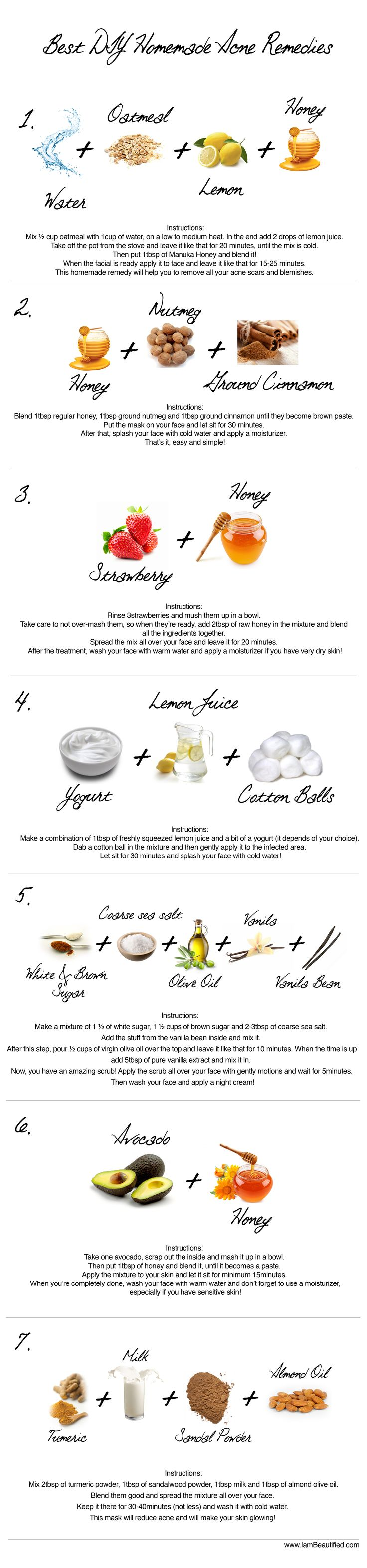Best DIY Homemade Acne Remedies.. Not sure about putting oils on acne, only one I'm comfortable with is tea tree