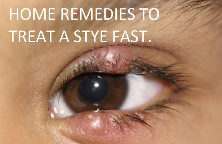 What causes a stye on the eye, symptoms and how to get rid of a stye overnight. A guide to natural home remedies for fast eye stye treatment.