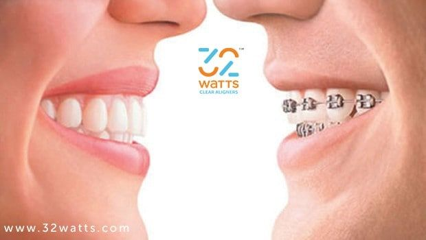 Invisible Braces Cost India Braces Cost Invisible Braces Teeth