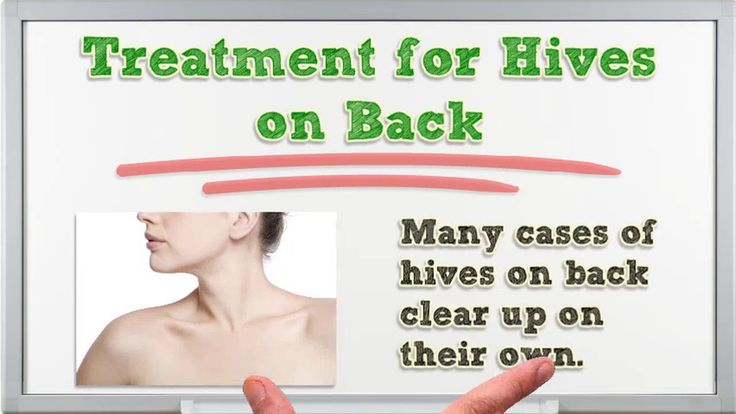 Hives on Back - Hives on Back Treatment - Hives on Back Pictures - Hives on Back and Stomach