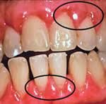 Best Natural Cures For Gum Pain..... These days one of the most common dental problems people are experiencing is gum pain. When experiencing painful gums, you need to take care of it to reduce the symptoms of gum pain, or it could give you  symptoms of gingivitis Before going to the treatment ... http://toothcaredaily.com/