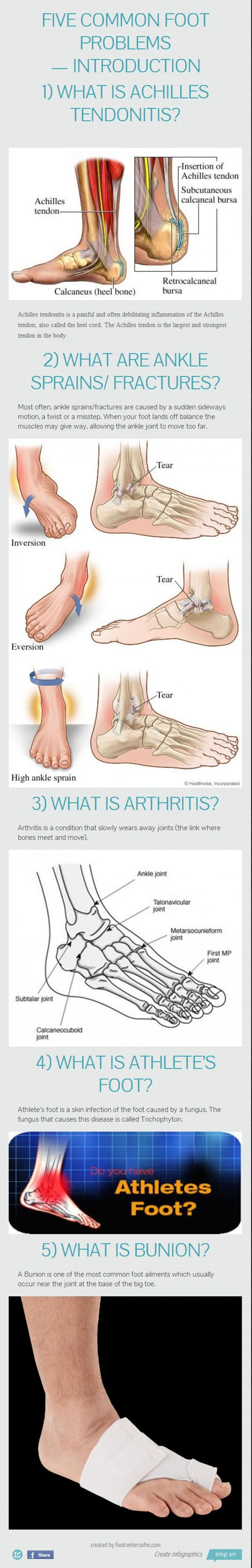 Five Common Foot Problems explained: arthritis, sprains, tendonitis and more. #podiatry