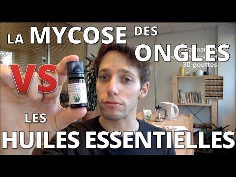 [Tuto] MYCOSE DES ONGLES - Traitement naturel aux huiles essentielles
