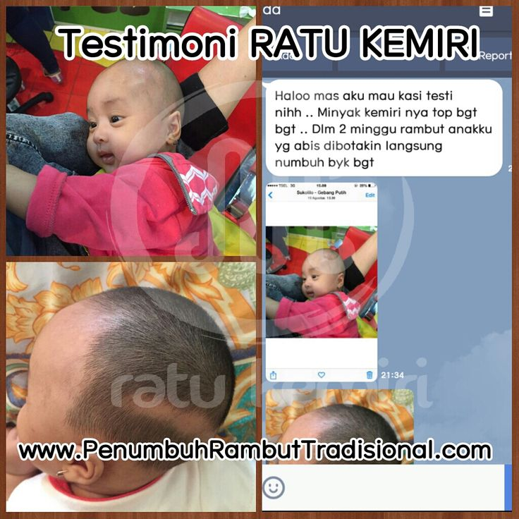 Jual obat penyubur rambut bayi alami Ratu Kemiri. SMS/WA 0878 2338 1610, BBM 2BEB4CE4. Aman dan terbukti berkhasiat.