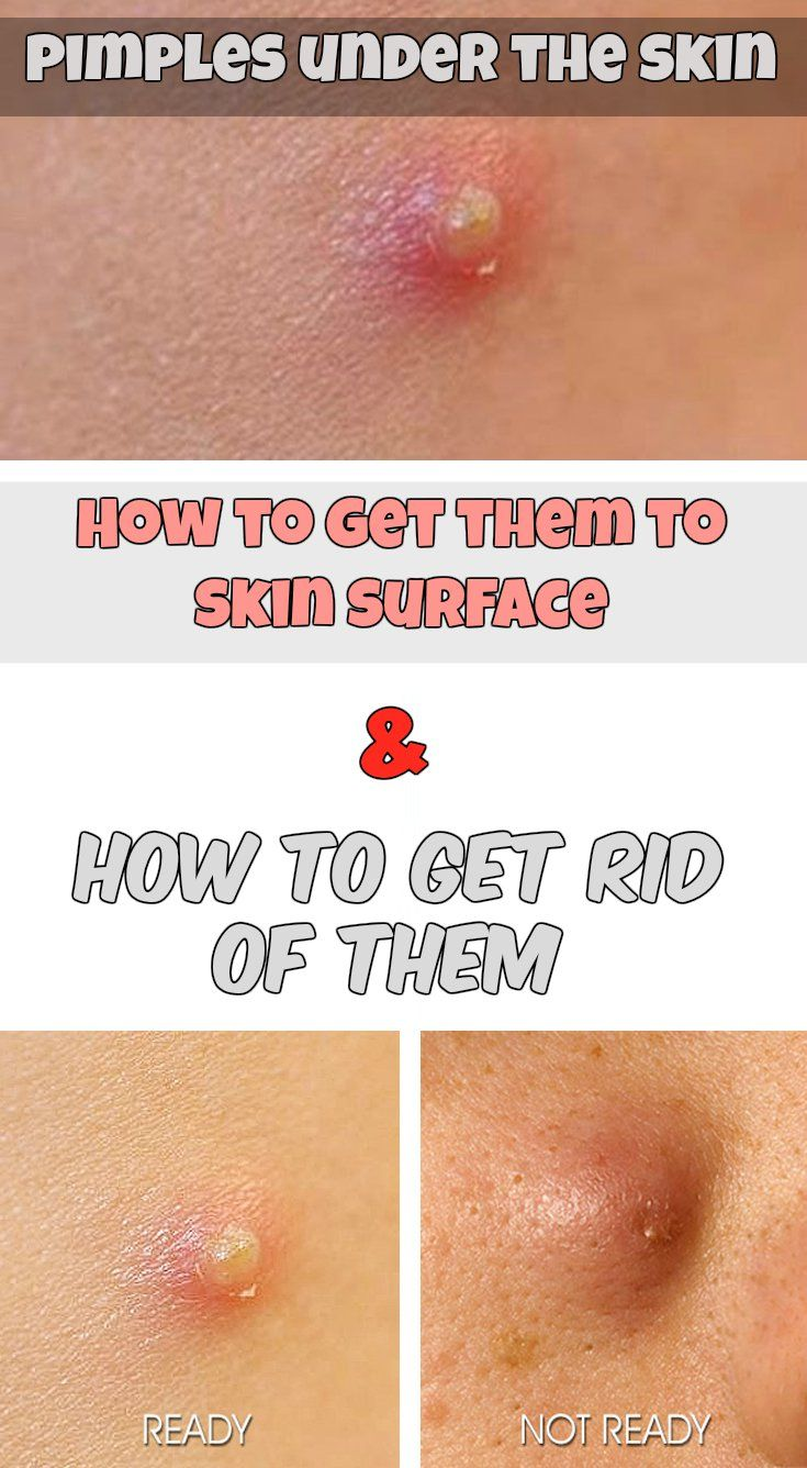 Pimples under the skin How to get them to skin surface and how to get rid of them.