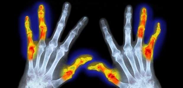 Упражнения при ревматоиден артрит - ФОРУМ ЗДРАВЕ | Здравен портал и форум