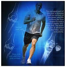 http://orthopaedics.manipalhospitals.com/sports-medicine.html Manipal hospital gives the best sports medicine to athletes & sports man. Our orthopaedic consultants in bangalore are expertise in providing physiotherapy & treatment for neck pain & back pain.