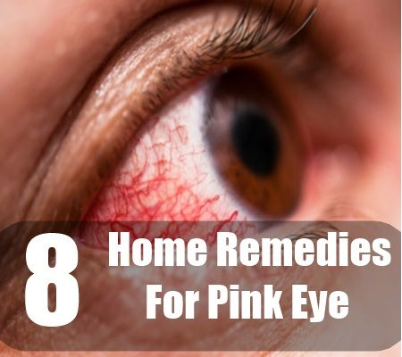 8 Best Home Remedies For Pink Eye