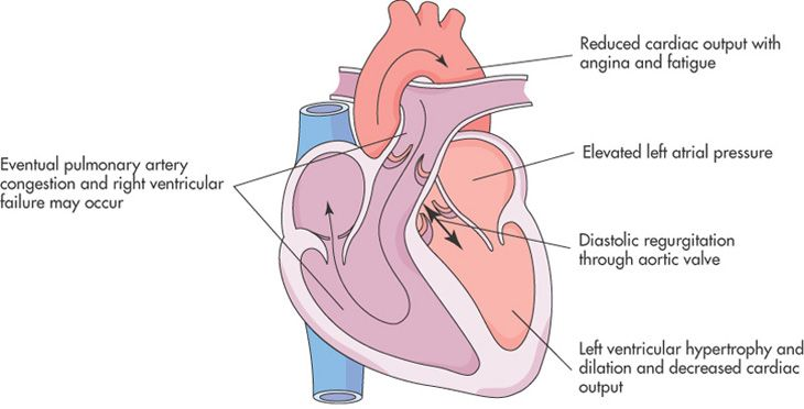 Aortic insufficiency/regurgitation