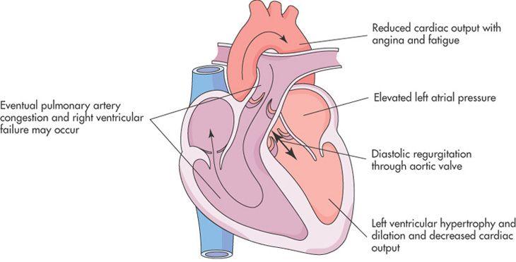 Aortic insufficiency/regurgitation