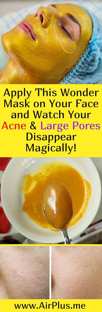 Apply This Wonder Mask on Your Face and Watch Your Acne & Large Pores Disappear Magically!