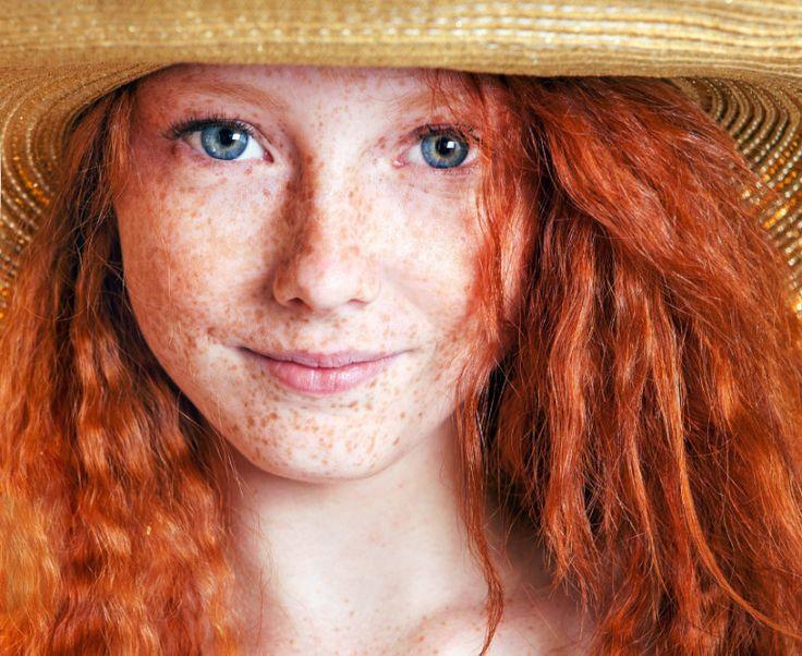 Macchie e discromie: come combatterle? Articolo della dermatologa Adele Sparavigna http://bit.ly/1tMvzNu