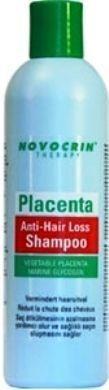 Saç dökülmesi nedir? Genel olarak saçın normal olan yenilenmesinin, dökülmesinin hissedilecek derecede hızlanması veya belirli bölgelerde olan dökülmeler sebebiyle, saçlı derinin çıplak, saçsız, seyrek saçlı bir görünüm kazanması. Saç dökülmeleri çoğunlukla iz bırakan ve bırakmayan dökülmeler diye iki gruba ayrılırsaç dökülmesi Saç dökülmesinin, en sık rastlanılan şekli, erkeklerde görülen seboreik bünyelerin saç dökülmesidir. Seboreik bünyeye sahip olanların derialtı yağ bezlerindeki bir…