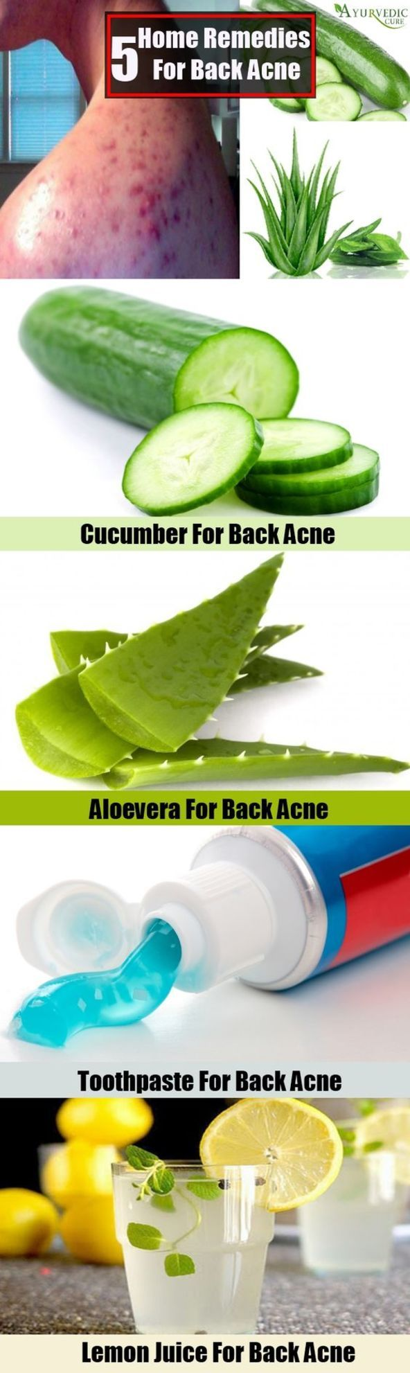Homemade Acne Treatment - How to Get Rid of Back Acne Quickly ** More info could be found at the image url. #HomemadeAcneTreatment