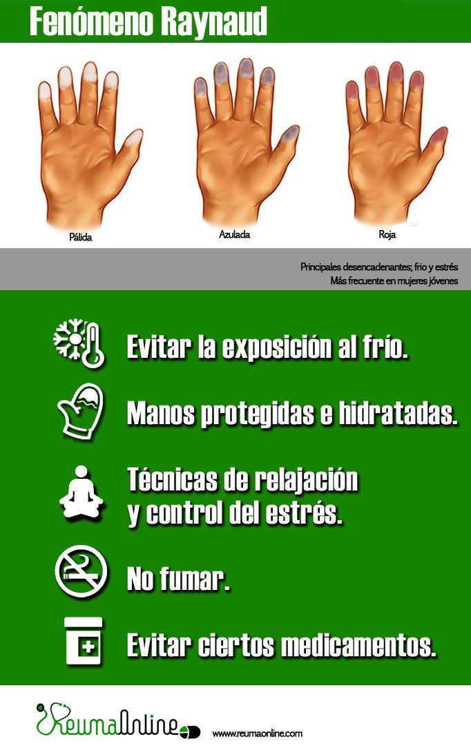 El fenómeno de Raynaud se caracteriza por la aparición de cambios en la coloración de los dedos, aunque también puede aparecer en otras localizaciones como labios, orejas y nariz; los principales estímulos que desencadenan este fenómeno son la exposición al frío y el estrés.