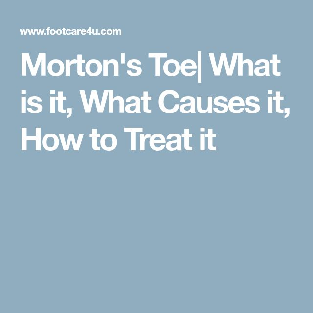 Morton's Toe| What is it, What Causes it, How to Treat it