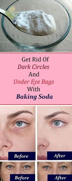 Eye bags: 1. Add 1 teaspoon of backing soda in a glass of hot water or tea and mix it well. 2. Take a pair of cotton pads and soak them in the solution and place them under the eye. 3. Let it sit for 10-15 minutes, then rinse it off and apply a moisturizer Practicing this procedure daily will render amazing results in just a week.