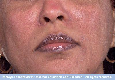 Rosacea On Dark Skin Rosacea Treatment Rosacea Causes