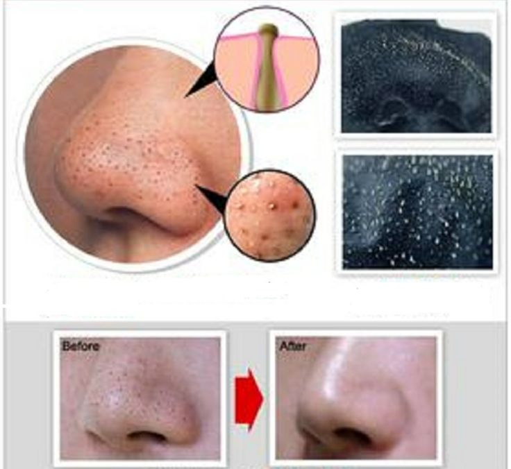 Before After Blackhead Removal Mask Set