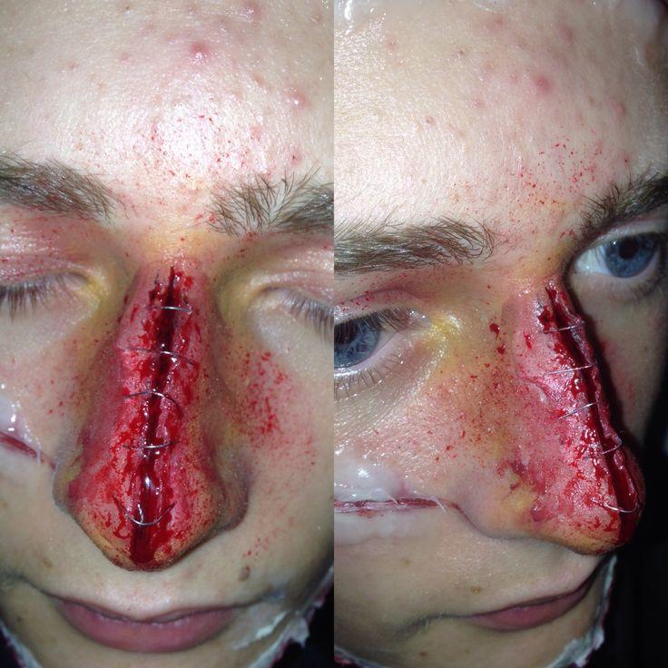 Close up of a split nose #sfx #surgery #effect #staples #mua #media