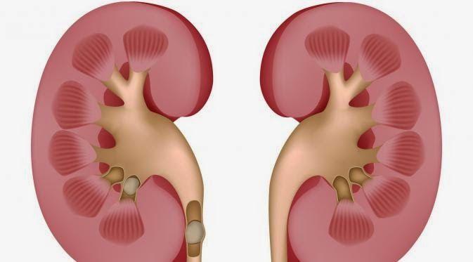Cara Mudah Mencegah Penyakit Ginjal
