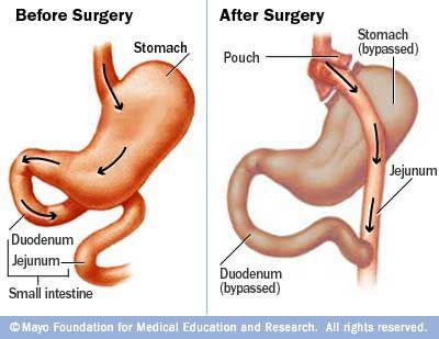 Wat veranderd er na een gastric bypass operatie. Links de huidige maag - rechts na de gastric bypass