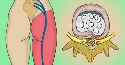 Priškripnutý nerv vo vašej bedrovej oblasti? Tu sú 2 jednoduché spôsoby, ako sa zbaviť bolesti! | Báječné Ženy
